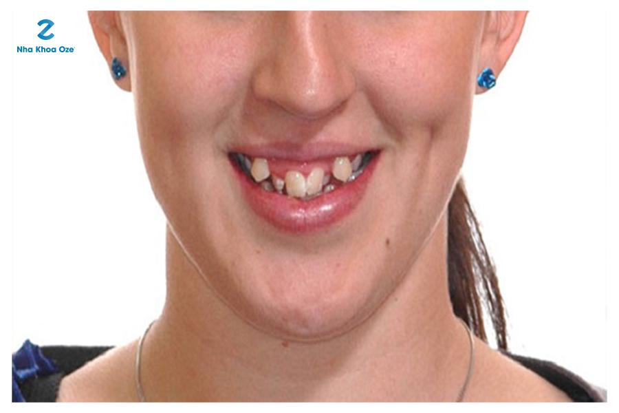 Răng khểnh gây ra một số vấn đề về bộ nhai và bệnh răng miệng