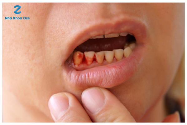 Chân răng chảy máu là một trong những dấu hiệu của bệnh viêm chân răng