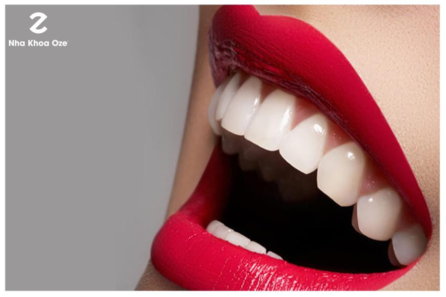 Có được hàm răng đều tăm tắp, trắng, khỏe đẹp là mong muốn của rất nhiều người