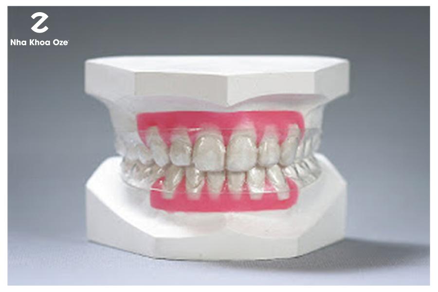 Cách sử dụng khay niềng răng invisalign cực kì đơn giản