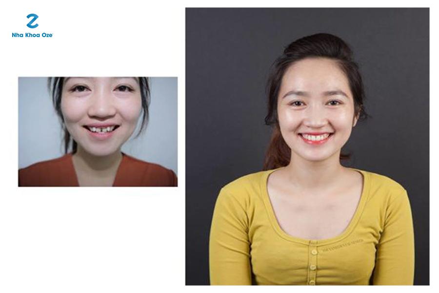 Vì sao niềng răng lại làm cho khuôn mặt có phần thay đổi