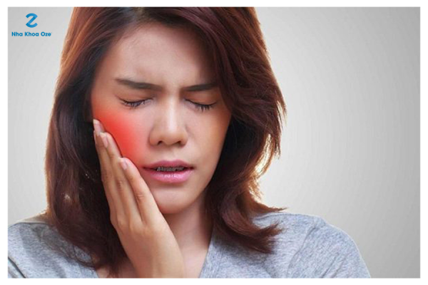 Răng khôn mọc lệch gây đau nhức khó chịu