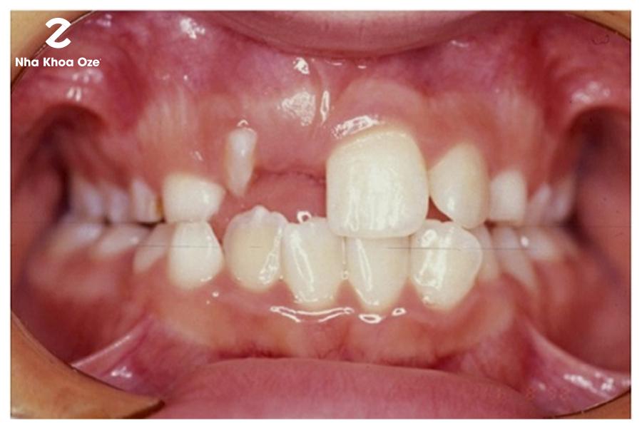 Nhổ răng nanh ngầm không gây nguy hiểm