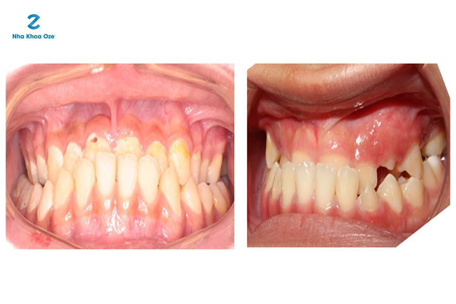 Răng mọc mức độ 3 là trường hợp bị móm nặng