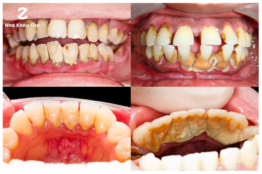 Có nhiều nguyên nhân gây nên cao răng