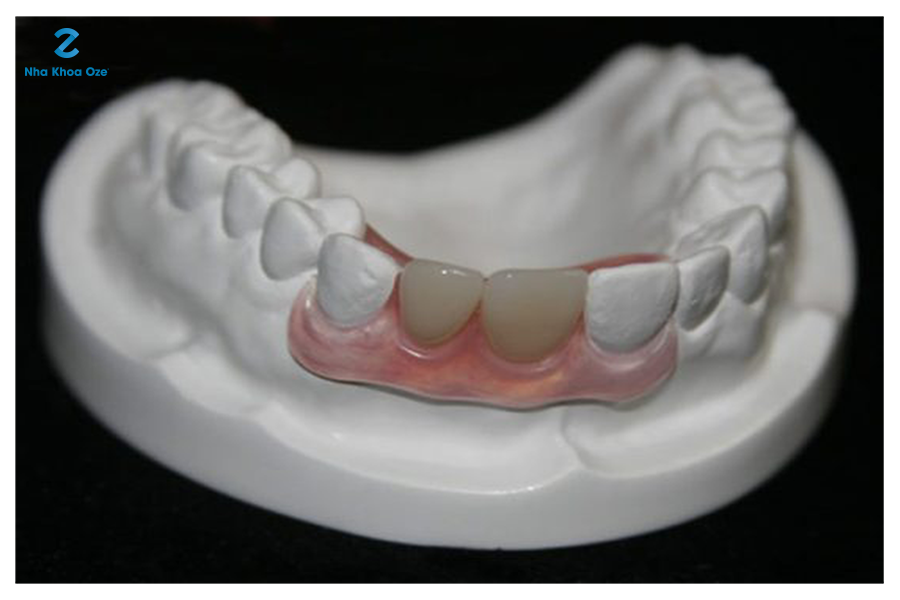 Trồng răng giả an toàn