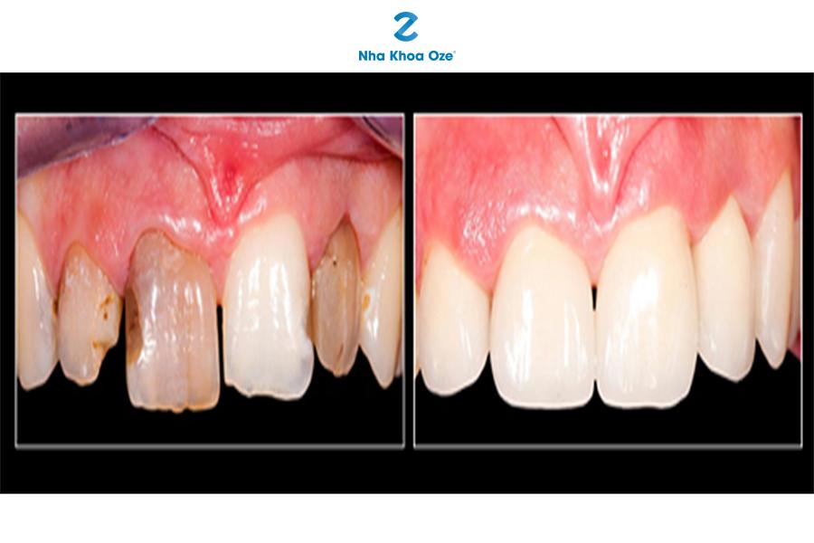 Ảnh minh họa phục hình răng bằng phương pháp bọc răng sứ