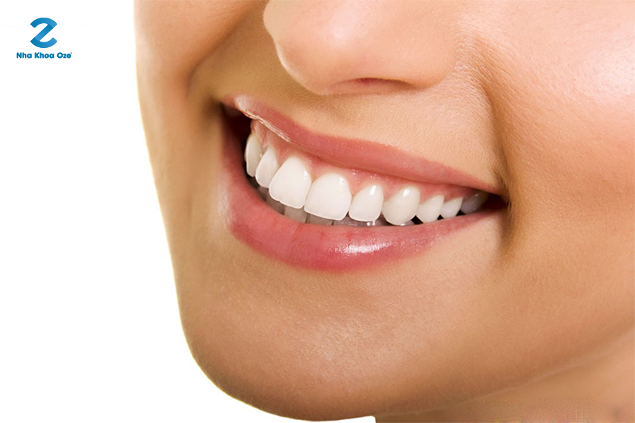 Cách chăm sóc răng miệng cũng ảnh hưởng đến độ bền của răng sứ