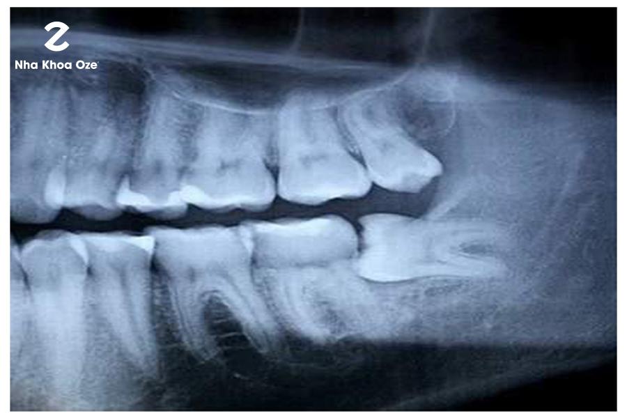 Đã qua độ tuổi trưởng thành, răng khôn cũng không có thời gian mọc lên
