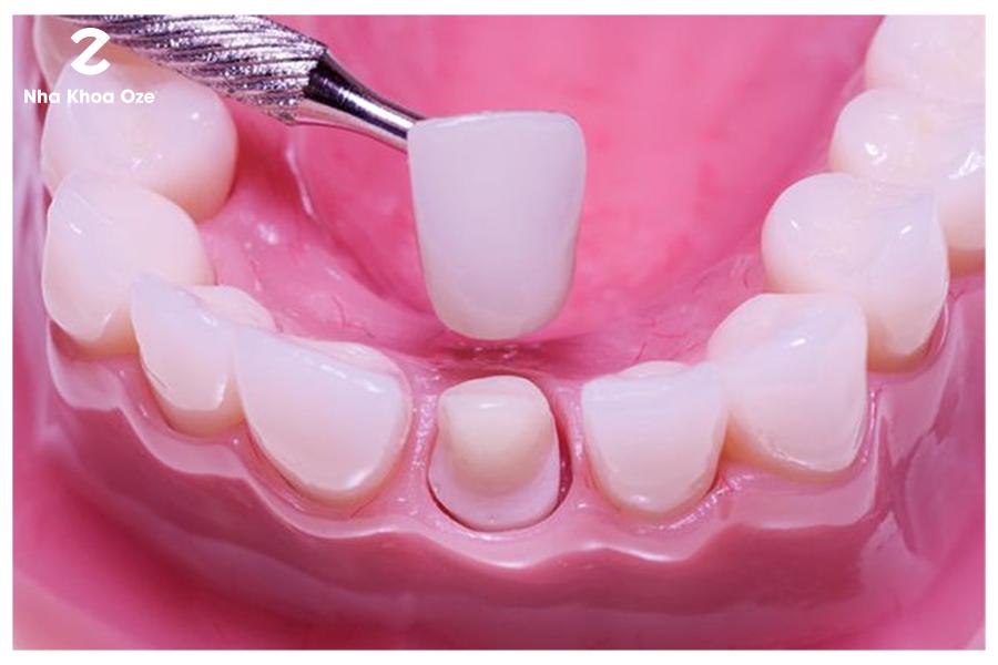 Cần phải mài răng theo tiêu chuẩn cụ thể trước khi tiếng hành bọc răng sứ