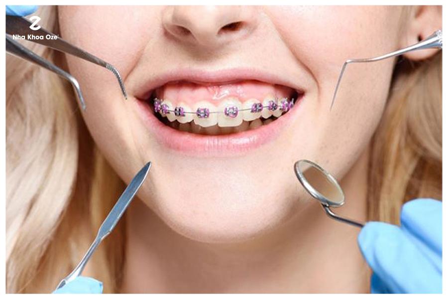 Chỉnh nha giúp khắc phục mọi khuyết điểm của răng