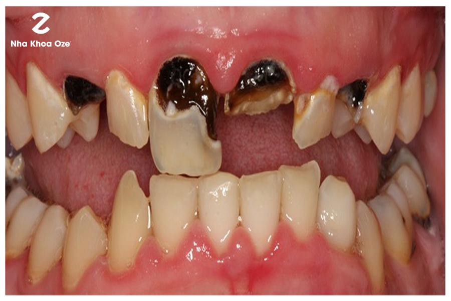 Sún răng sẽ ảnh hưởng đến việc mọc răng vĩnh viễn sau này