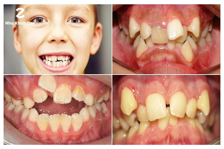 Răng mọc lệch hàm trên là khi có răng thụt vô, có răng chìa ra,...