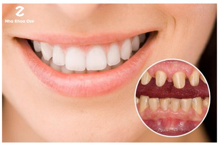 Trước khi bọc răng sứ, răng thật cần được mài