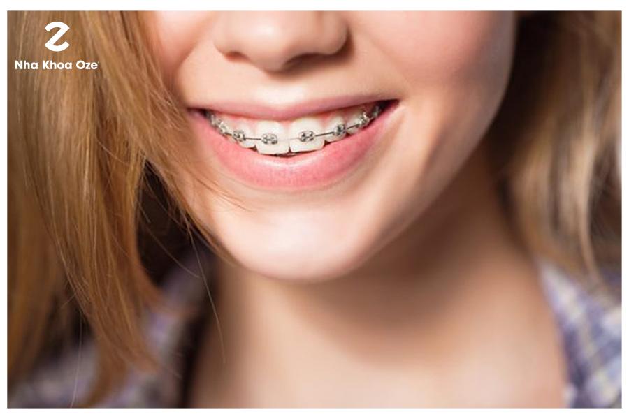 Dễ dẫn đến các vấn đề về răng miệng