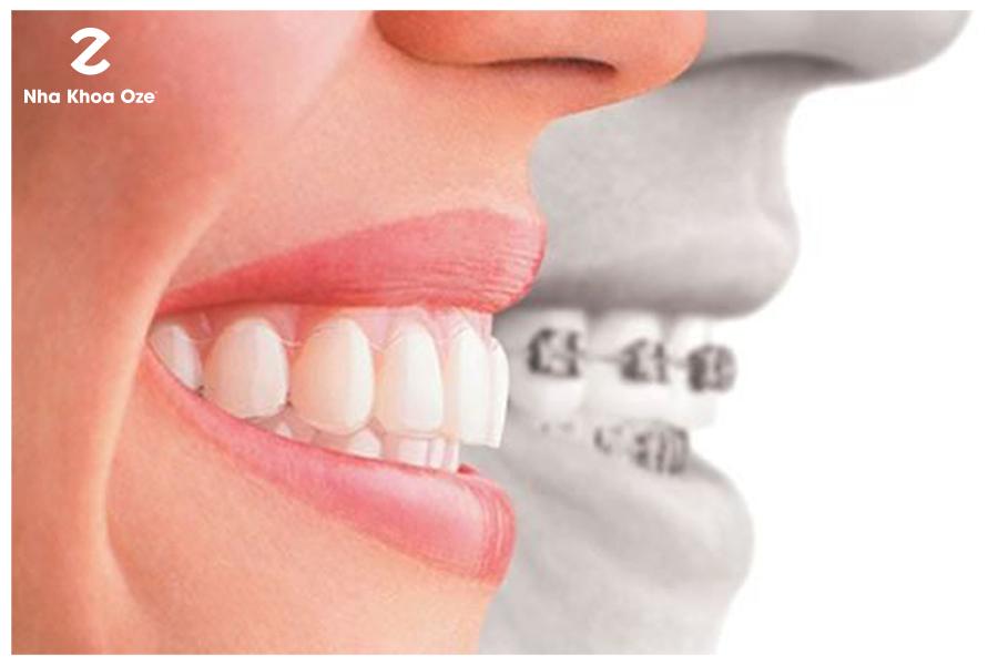 Thực hiện niềng răng để có khớp cắn chuẩn