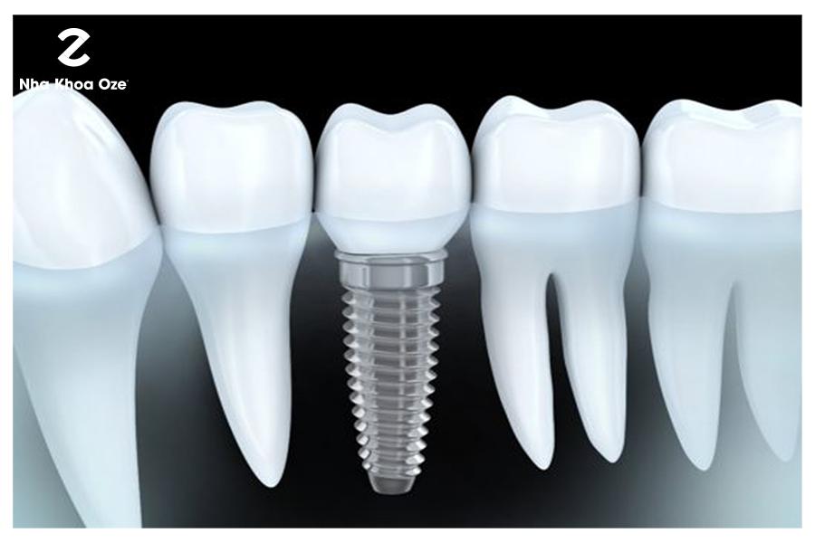 Phương pháp cấy ghép răng nanh giả bằng Implant