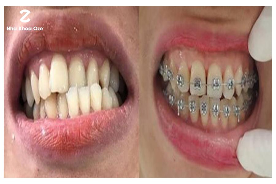 Thực hiện niềng răng kết hợp với chỉnh nha