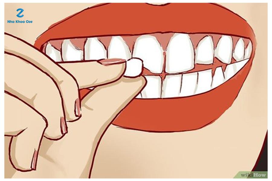 Các mảnh vỡ lớn không gây hở chân răng hoặc tủy sẽ được gắn lại