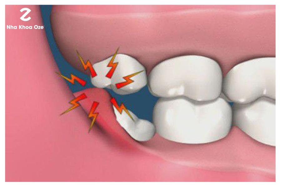 Nếu răng khôn mọc thẳng, ta có thể tiến hành cắt lợi trùm