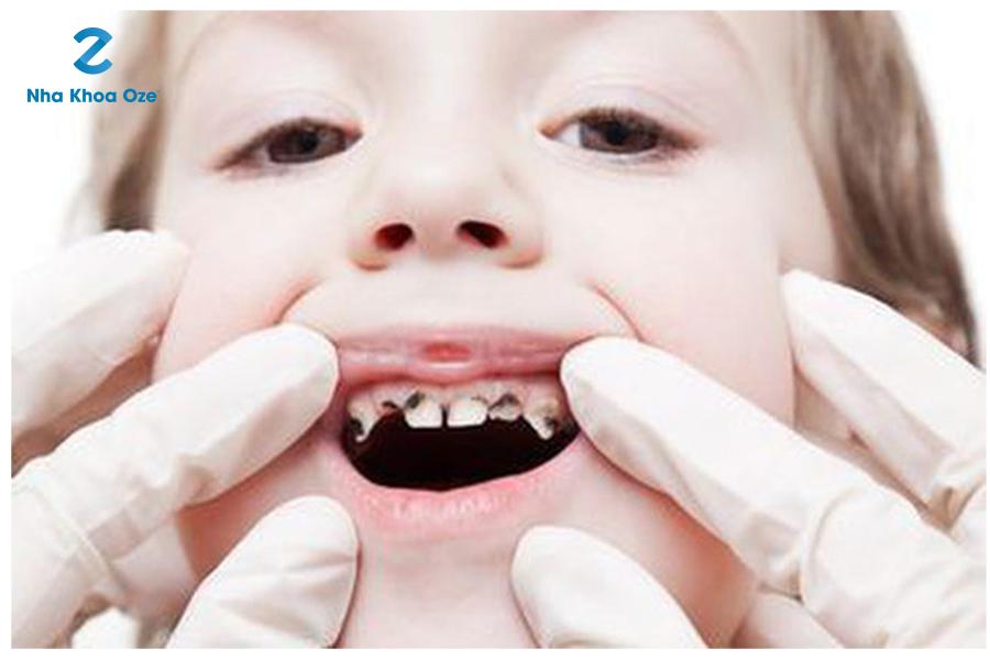 Phương pháp đánh răng đúng cách