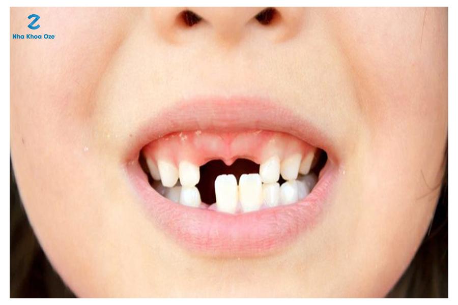 Có rất nhiều nguyên nhân gây nên tình trạng sún răng ở trẻ