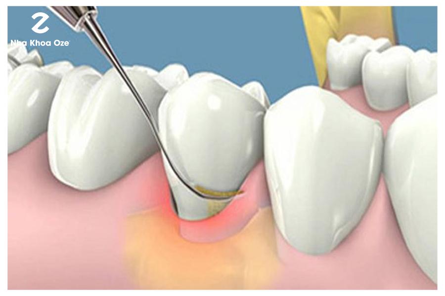 Lấy cao răng loại bỏ các mảng bám đen trên răng