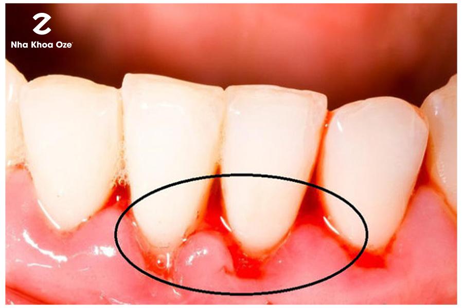 Chảy máu chân răng cũng là biểu hiện của viêm lợi