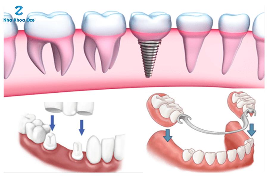 Sau nhổ răng thì bệnh nhân có thể trồng răng mới để sử dụng