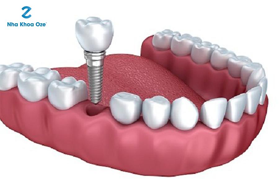 Những ưu điểm vượt trội của trồng răng implant