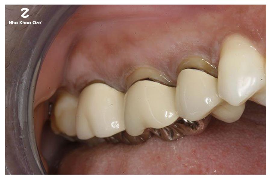 Ảnh minh họa về răng sứ kém chất lượng gây hôi miệng