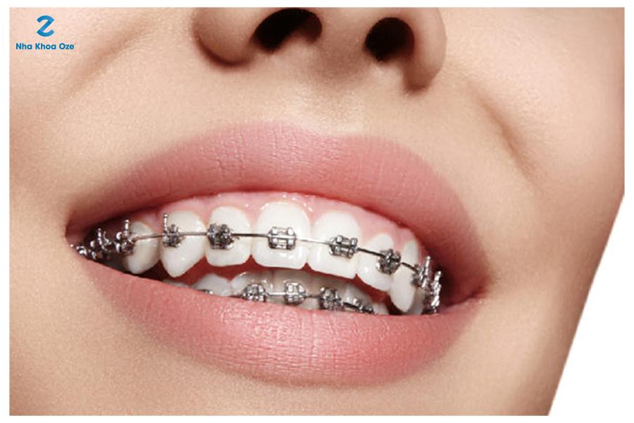 Niềng răng là phương pháp hữu hiệu nhất giúp bạn có được một hàm răng đẹp