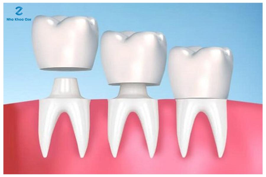 Bọc răng sứ cho trường hợp gãy răng có thể phục hồi