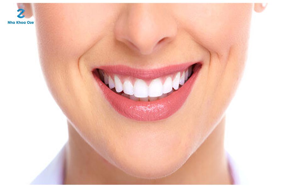 Sự tương quan hài hòa giữa răng 2 hàm