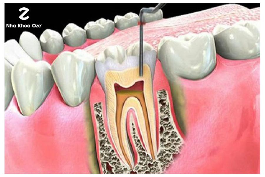 Hình ảnh cắt khi răng bị viêm tủy răng