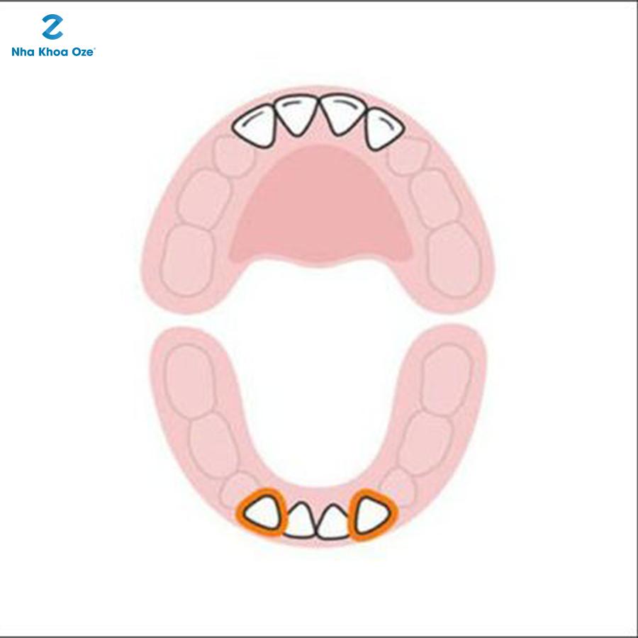Rồi đến 2 chiếc răng số 2 đối diện ở hàm phía dưới