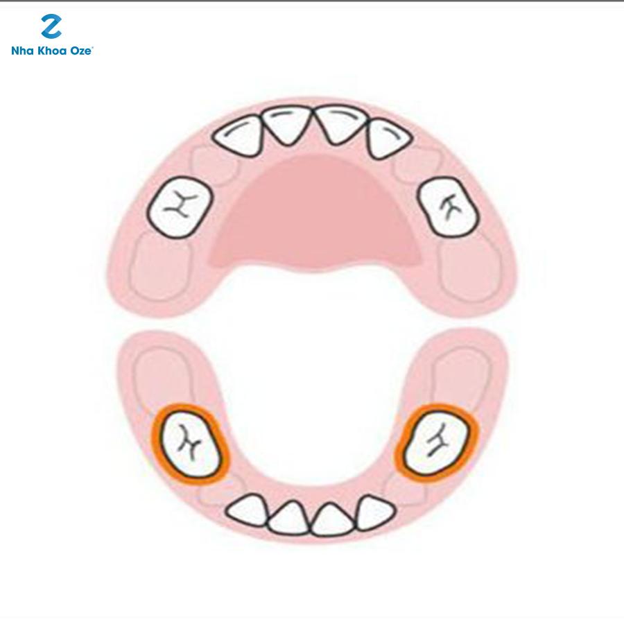 Rồi đến đối diện vị trí của 2 chiếc răng hàm giữa phía hàm dưới