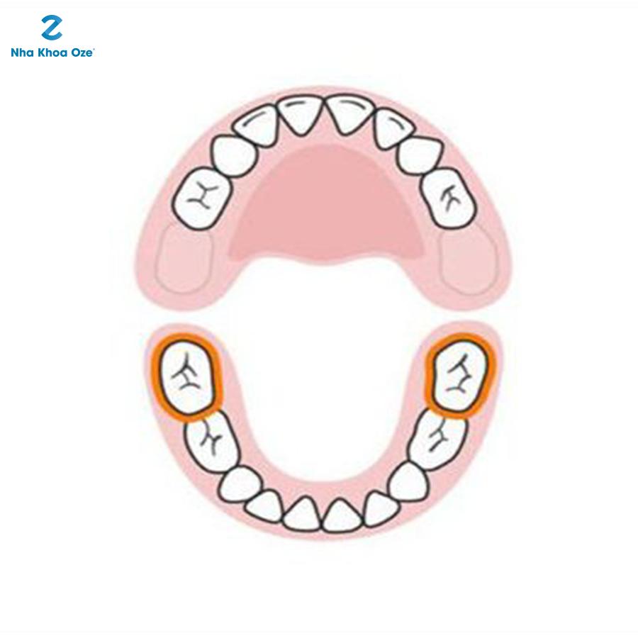 2 chiếc răng hàm cuối được lấp đầy hàm dưới