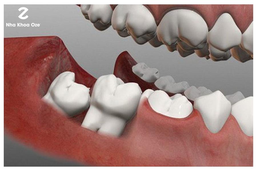 Răng khôn mọc lệch do một số nguyên nhân khác nhau
