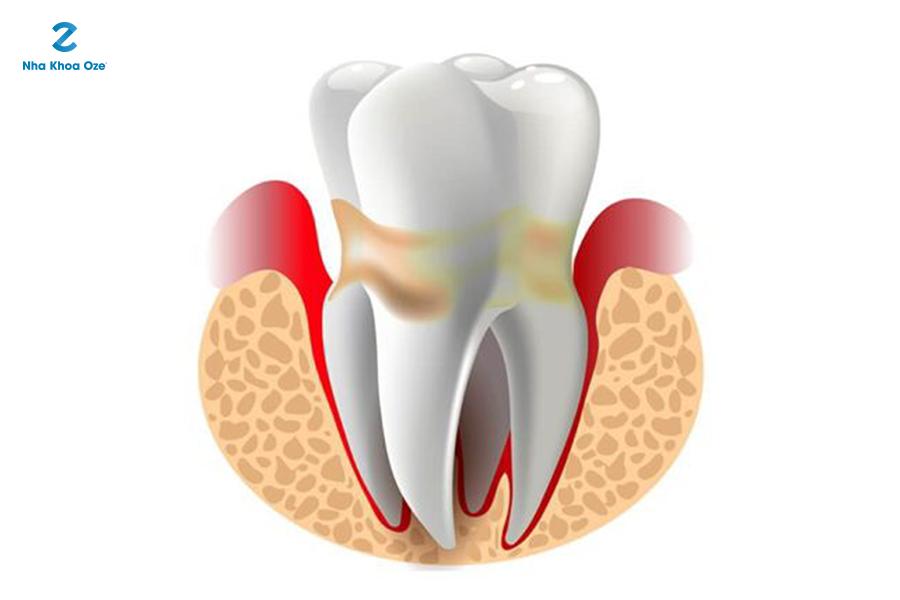 Mảng bám, cao răng (vôi răng) tạo điều kiện cho vi khuẩn trú ẩn