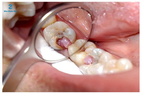 Biến chứng nguy hiểm của bệnh viêm tủy răng