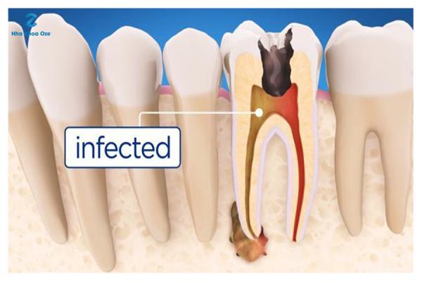 Root canal là gì? - 1 phần thuộc chân và 1 phần của thân răng