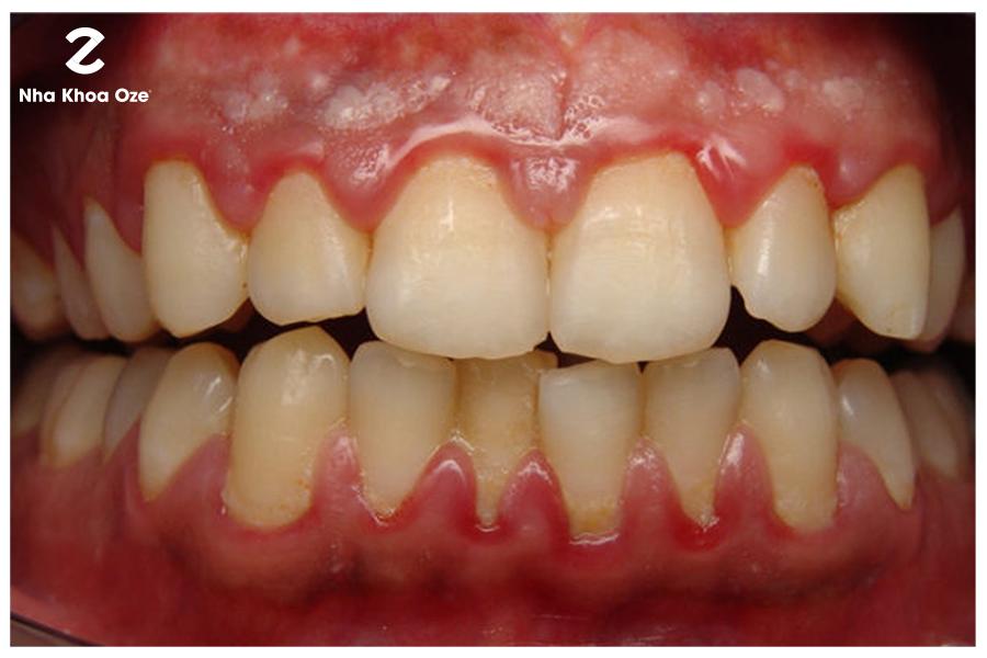 Khi thấy dấu hiệu của những đốm trắng trên nướu răng bạn nên nhanh chóng đến bác sĩ kiểm tra