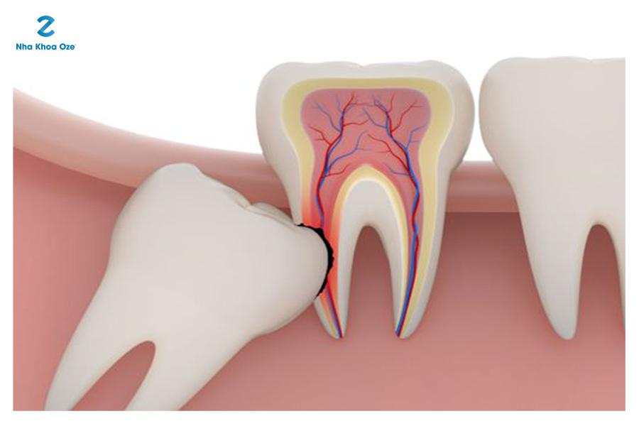 Khi mọc răng khôn, bên cạnh sưng chân răng là những cơn đau âm ỉ, nhức nhối