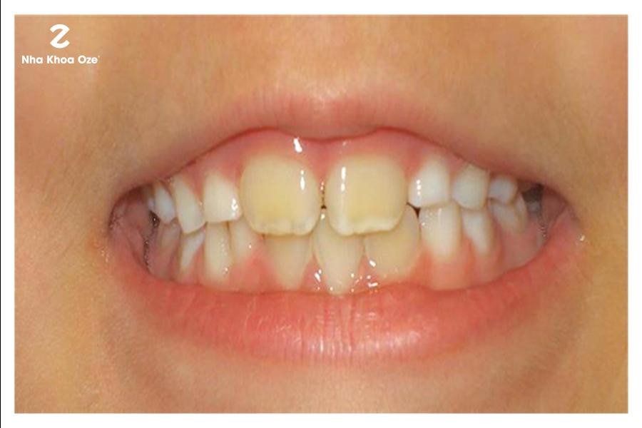 Mẹ có sức khỏe yếu hoặc bé bị sinh non bị vàng răng