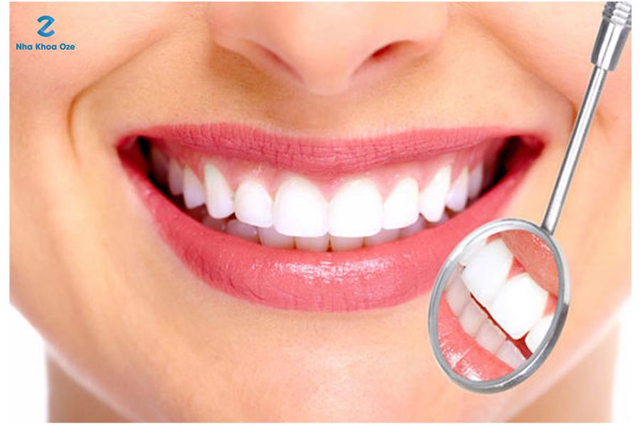 Hàm răng trắng sáng, tự nhiên