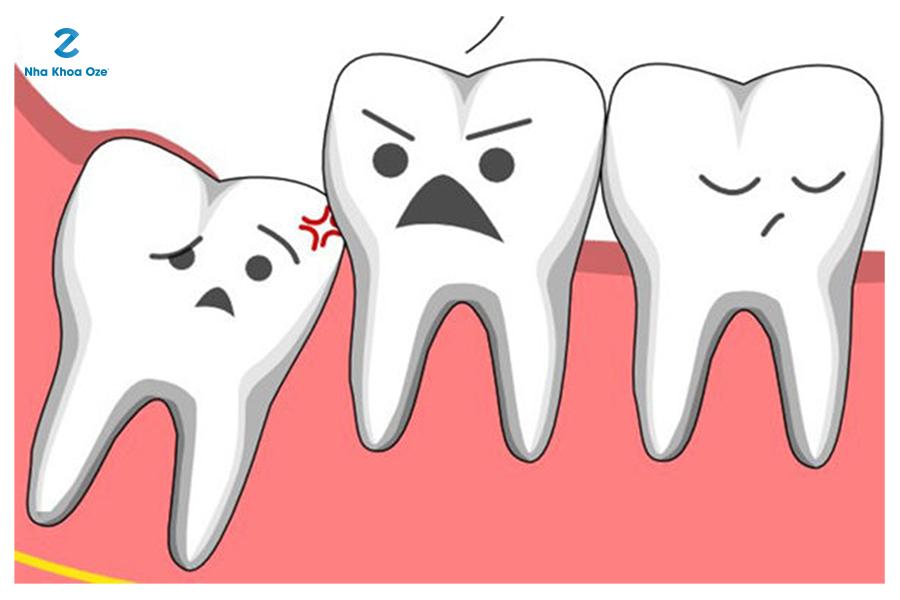 Răng khôn mọc lệch gây ảnh hưởng đến các răng bên cạnh