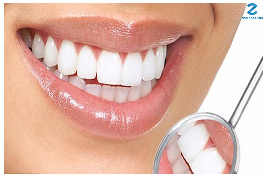 Răng sứ với màu sắc đẹp và rất tự nhiên