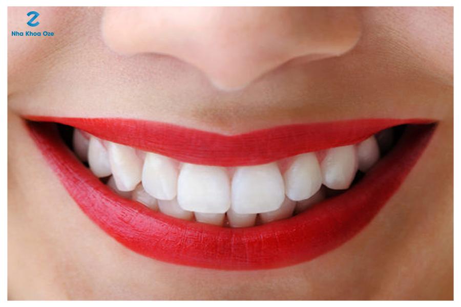 Hàm răng đẹp