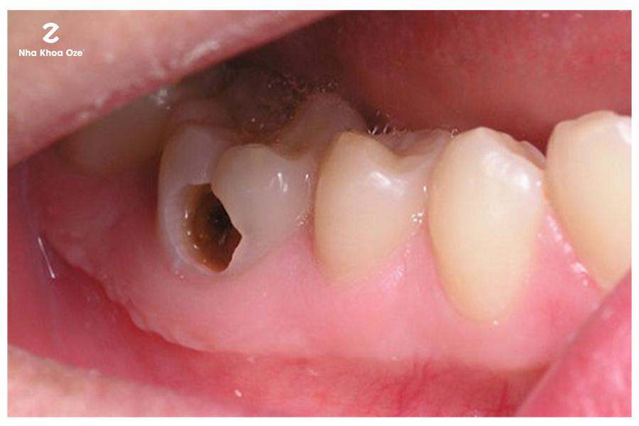 Răng sâu vào tủy gây ra những cơn đau kéo dài và liên tụcRăng sâu vào tủy gây ra những cơn đau kéo dài và liên tục